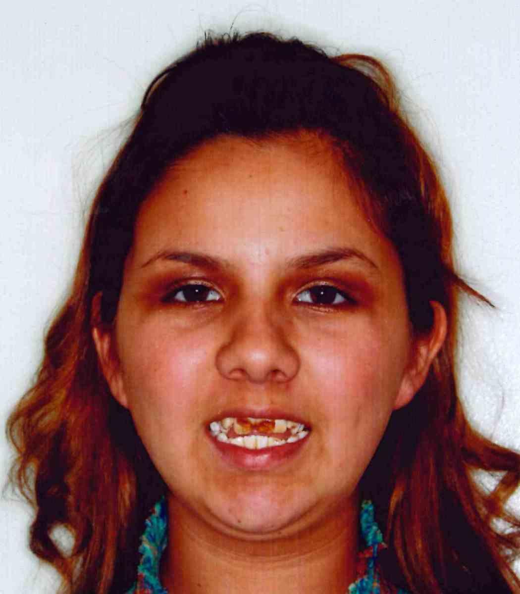 National Children's Dental Health Month: Fresh Start Gives Carmen a Smile