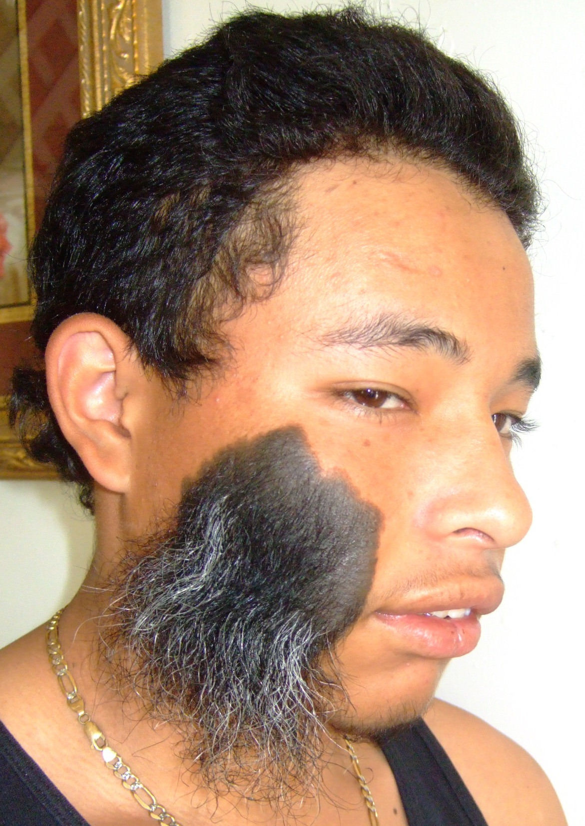 Hairy Face Disorder