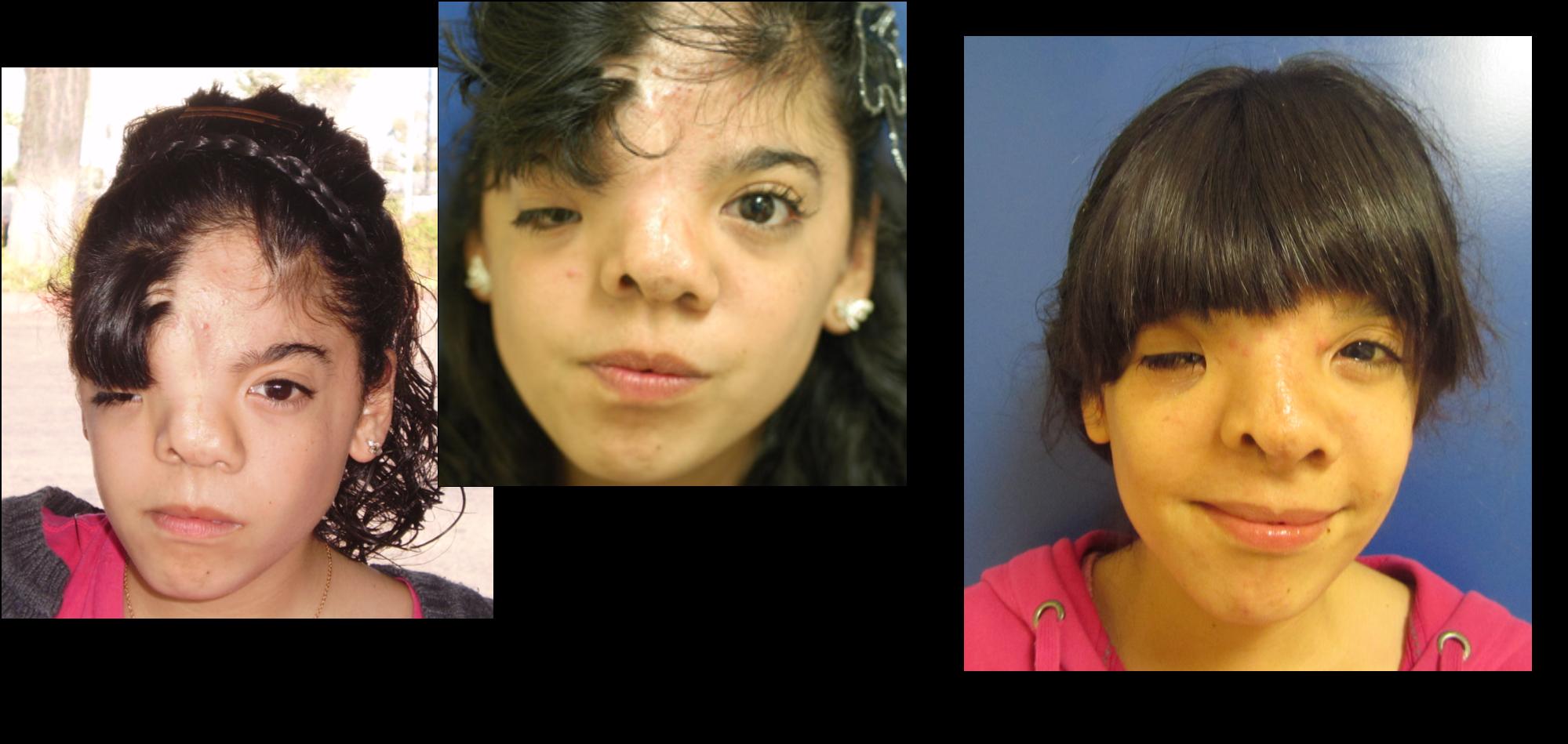 Cranial facial anomalies